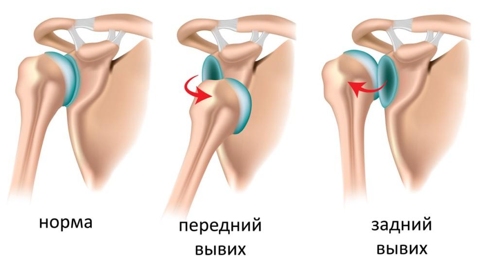 Какие суставы называются крупными лазерная терапия для суставов