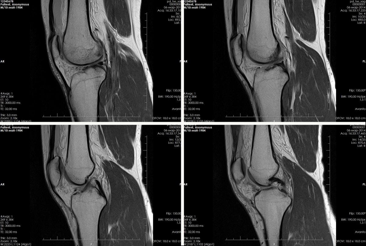 Картинки мрт коленного сустава остеоартроз логтевого сустава народное лечение