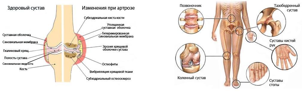 Артрит Сосудов