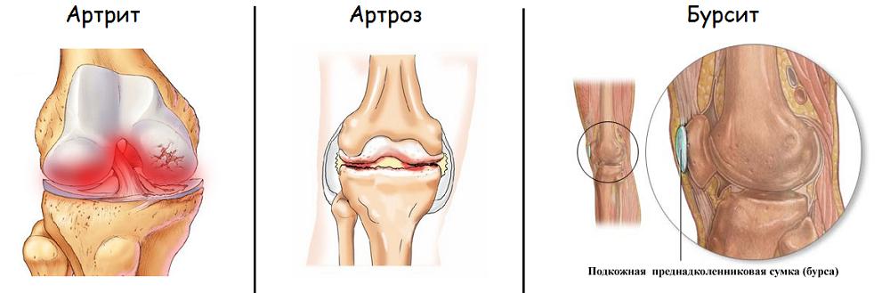 Чем отличается артрит от артроза коленного сустава фото
