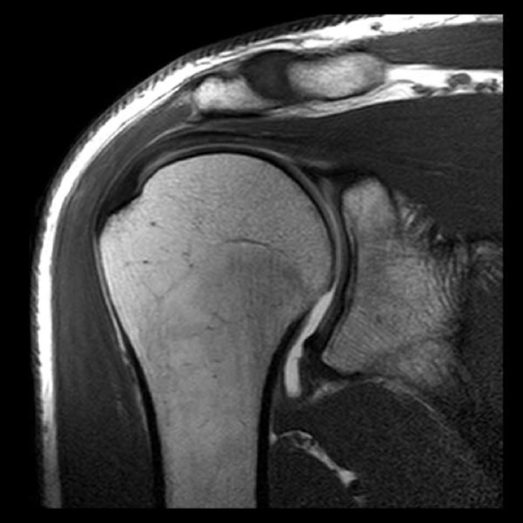 Сколько стоит мрт плечевого сустава бурсит коленного сустава википедия